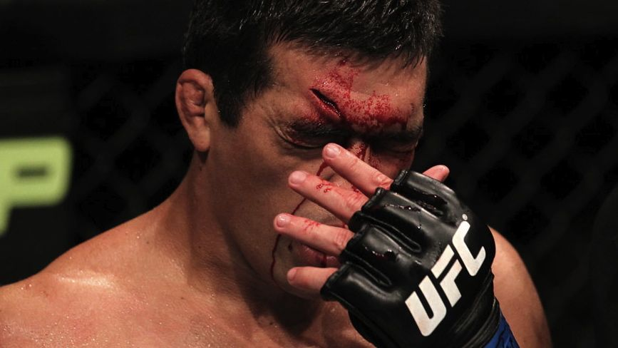 Lyoto Machida sofreu um corte profundo na testa depois de um golpe de Jon Jones