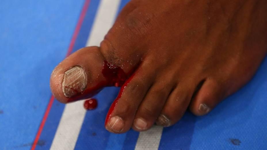 UFC 159: a lesão no dedão de Jon Jones durante a luta contra Chael Sonnen