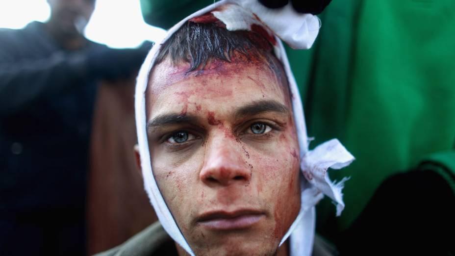 Muçulmano xiita recebe curativo durante ritual de autoflagelação do festival Ashura em Bagdá, Iraque