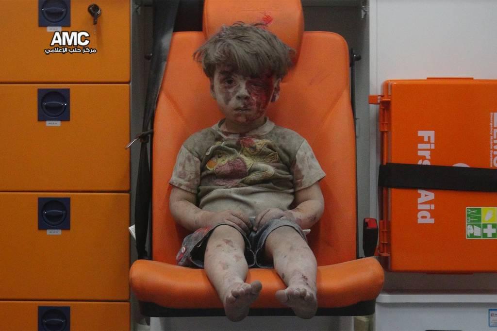 Menino aparece ferido em ambulância após confronto em Aleppo, na Síria - 17/08/2016