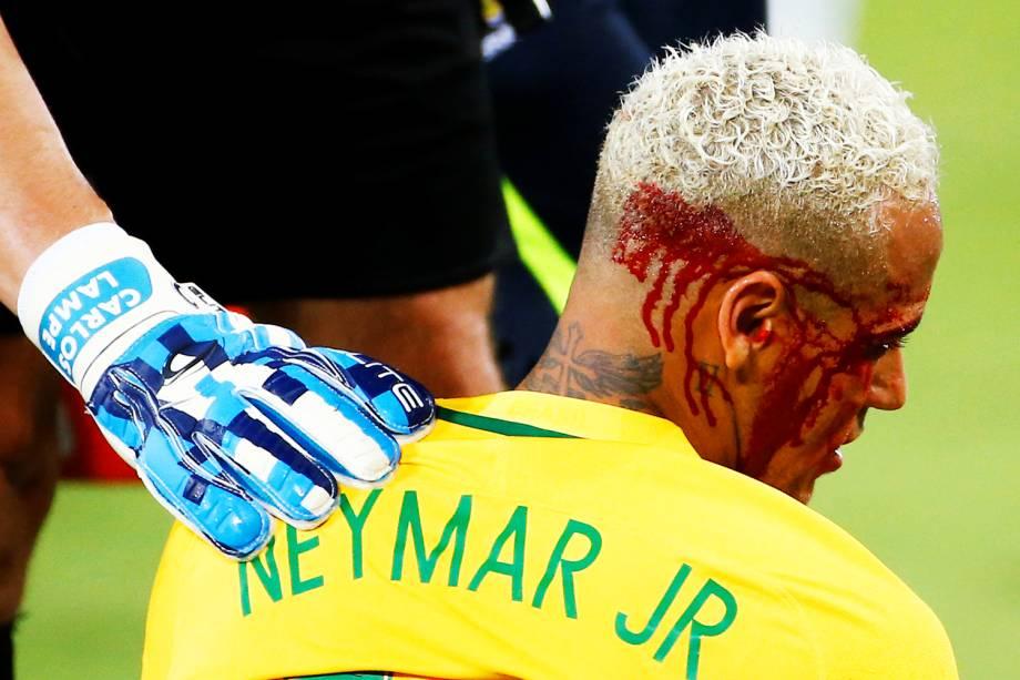 O jogador Neymar é visto sangrando após receber cotovelada durante partida contra a Bolívia, realizada na Arena das Dunas, em Natal (RN), válida pelas eliminatórias sul-americanas para a Copa do Mundo de 2018