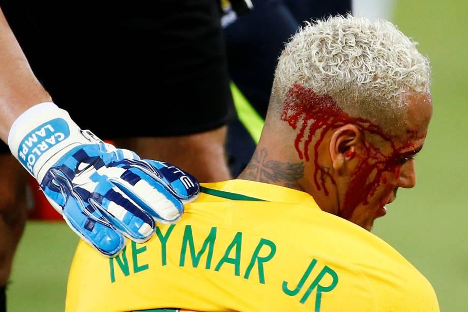 Neymar sofre corte na cabeça durante jogo contra a Bolívia na Arena das Dunas, em Natal