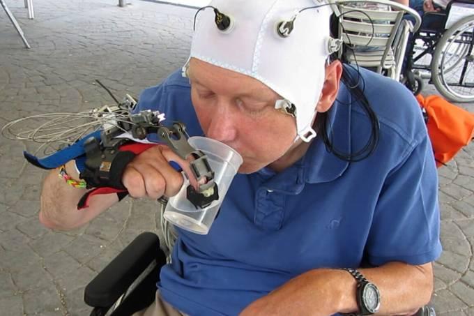 Prótese permite movimentação para pacientes tetraplégicos