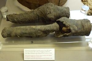 Pernas mumificadas, possivelmente da Rainha Nefertari, encontradas em sua tumba