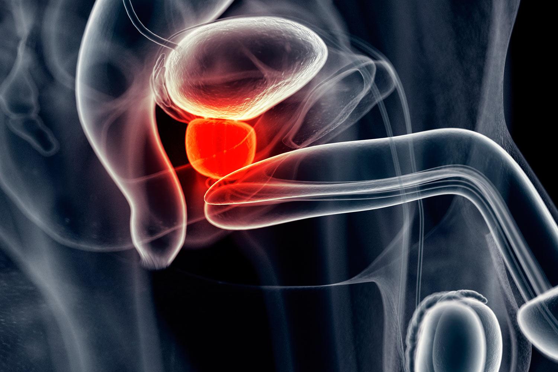 cancer de prostata artigo