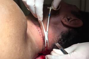 Pastor Valdemiro Santiago leva pontos após levar facada no pescoço