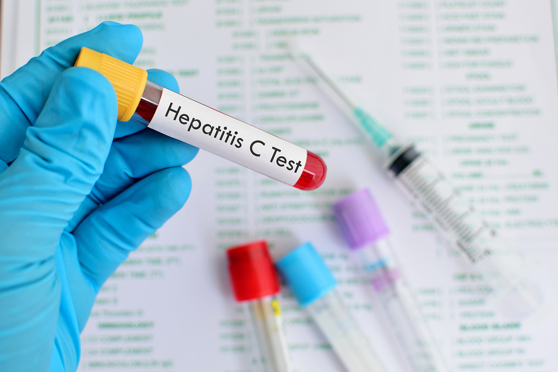 Hepatite: o número de infecções não para de crescer | VEJA