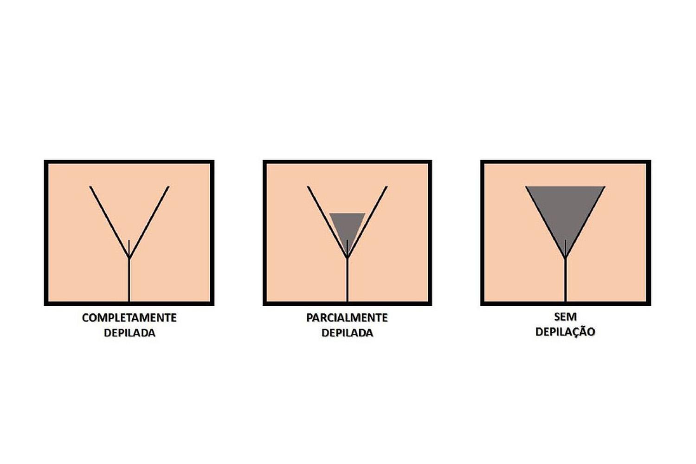 Pesquisa revela preferência dos brasileiros por depilação genital feminina completa