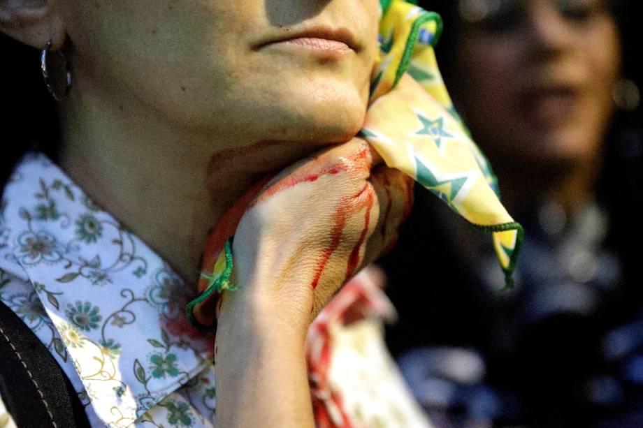 Manifestante ferida por bala de borracha durante protestos no Rio de Janeiro contra as reformas da previdência e trabalhista do governo Michel Temer - 28/04/2017