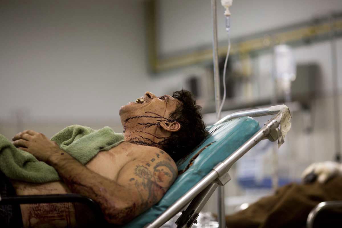 EXPRESSÃO DA DOR – O grito de Alexandre, torturado e atropelado: ataque com nível de brutalidade espantoso até para padrões cariocas