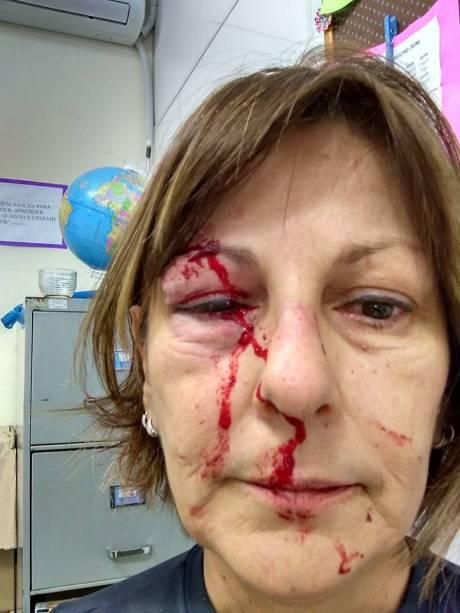 Márcia Friggi, professora da refe pública de ensino que foi agredida dentro da escola em Santa Catarina