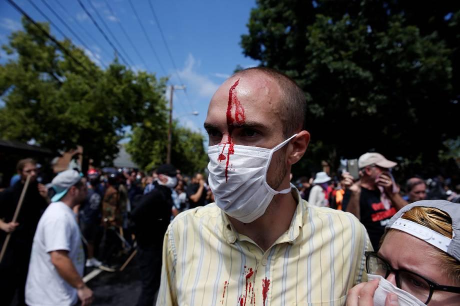 Homem ferido após confronto contra supremacistas brancos, em Charlottesville, Virginia