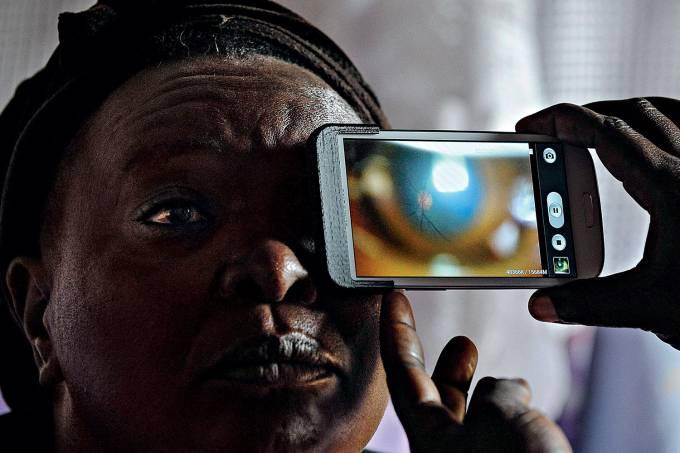 """OLHAR CERTEIRO – O aplicativo Peek (de """"espiar"""", em inglês, mas também sigla para """"kit portátil de exame de olhos"""") usa a câmera do smartphone para detectar a ocorrência de catarata. O flash do aparelho ilumina a retina e produz uma imagem, depois analisada pelo software, que dá o diagnóstico. Criado por uma instituição inglesa de mesmo nome, o Peek foi testado em 5000 quenianos em 2016. A pretensão é levá-lo a 2,5 bilhões de indivíduos sem acesso a tratamentos oftalmológicos, usualmente caros. No exemplo da catarata, 51% dos casos de cegueira no mundo são decorrentes da doença — e poderiam ser evitados."""