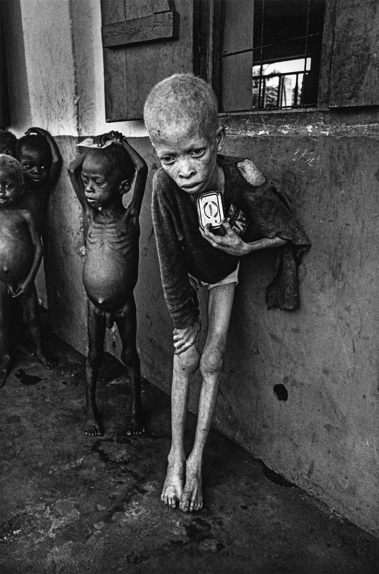Fome em Biafra na Nigéria