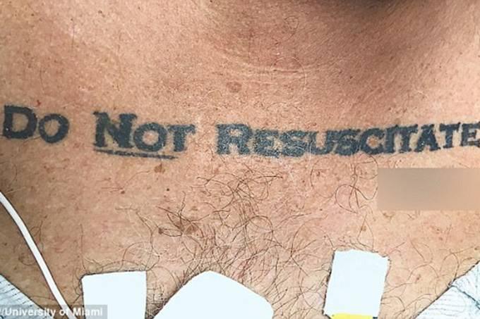 """Paciente com tatuagem de """"Não ressucitar"""""""