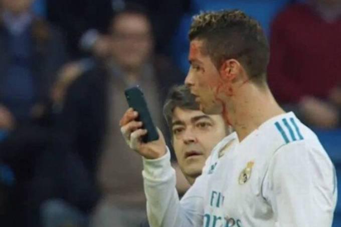 Cristiano Ronaldo observa corte no supercílio pelo celular