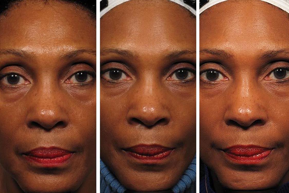 A evolução da aparência de uma das participantes do estudo.