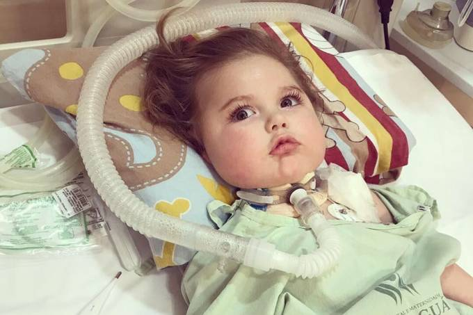 O bebê Jonatas no primeiro dia de tratamento com medicamento importado dos EUA