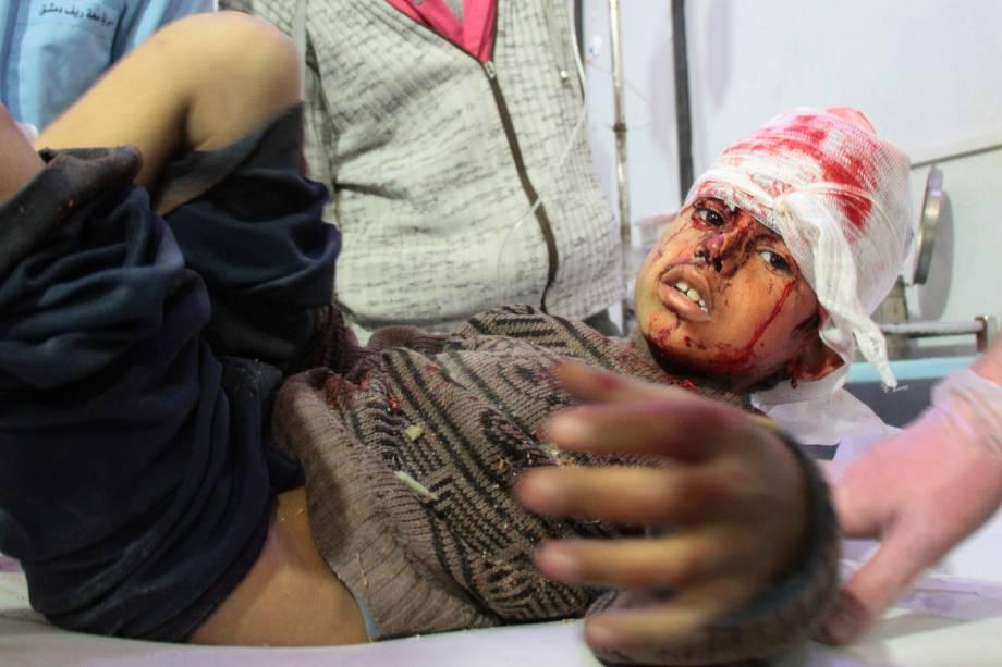 Menino ferido recebe tratamento em um hospital em Douma após ataques aéreos do governo na aldeia síria de Mesraba, na região sitiada de Ghouta Oriental, nos arredores da capital Damasco - 19/02/2018