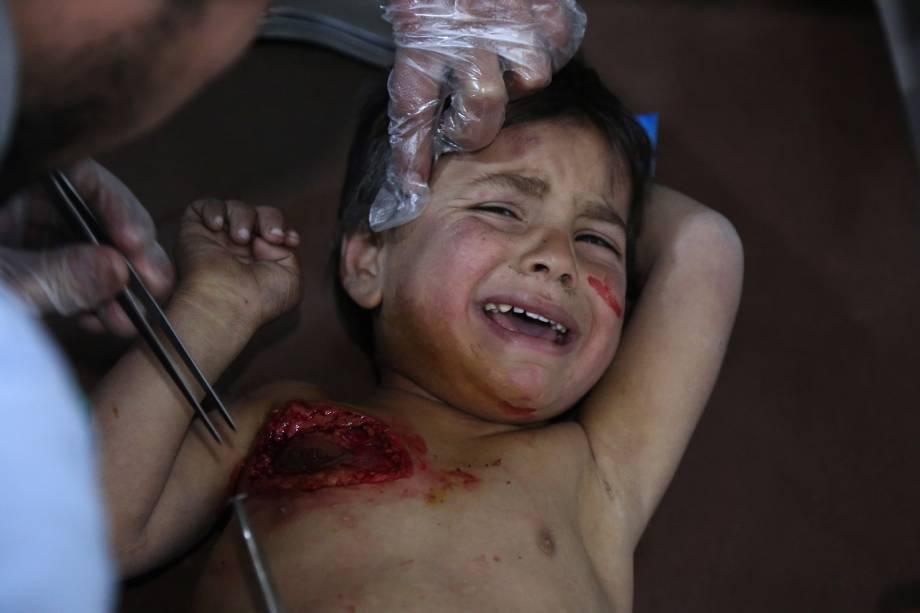 O pequeno Mohammed chora enquanto recebe tratamento em um hospital em Kafr Batna depois de ter sido ferido com sua mãe nos ataques aéreos das forças do governo na cidade de Jisreen, na região sitiada de Ghouta Oriental - 20/02/2018
