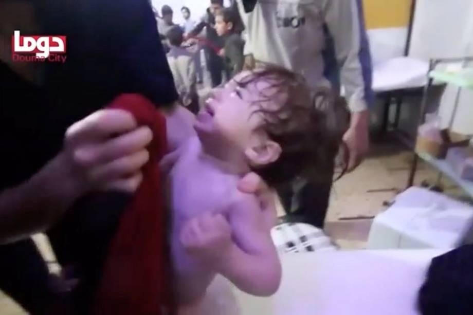 Criança chora enquanto recebe tratamento após ataque de armas químicas, em Douma, na Síria - 08/04/2018