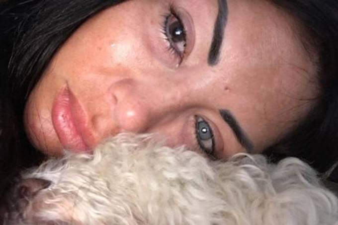 Modelo do Instagram faz cirurgia para trocar cor do olho