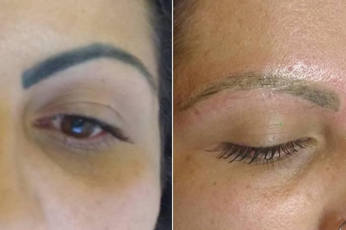 Hell Tattoo 1 e 2: antes e depois da despigmentação de sobrancelhas