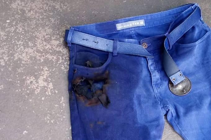 Celular explode em bolso de homem na cidade de Araçatuba
