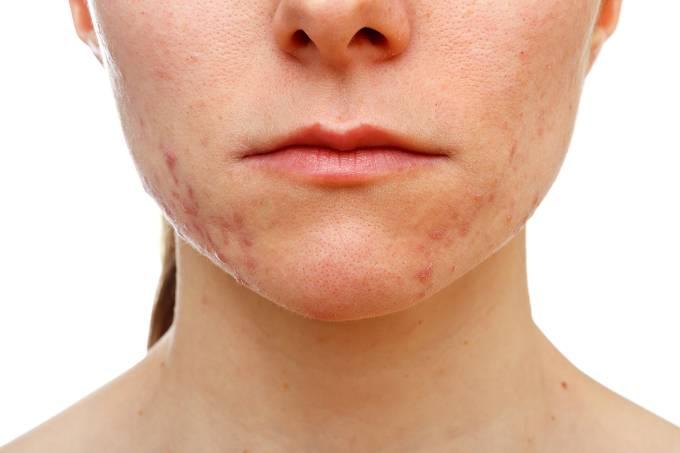 Adolescente com acne