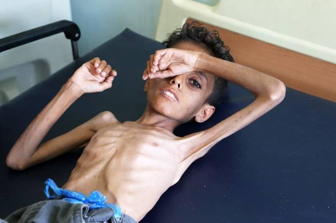 Crise humanitária no Iêmen