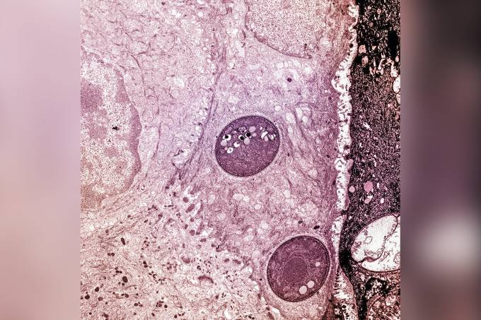 FUNGO—BATRACHOCHYTRIUM-DENDROBATIDIS-7357.jpg