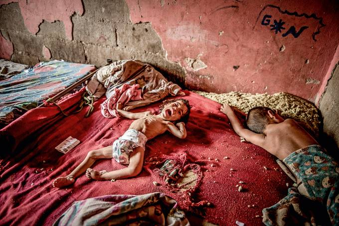 Criança subnutrida na Venezuela