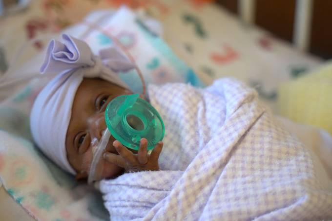 Saybie a menor bebê sobrevivente do mundo