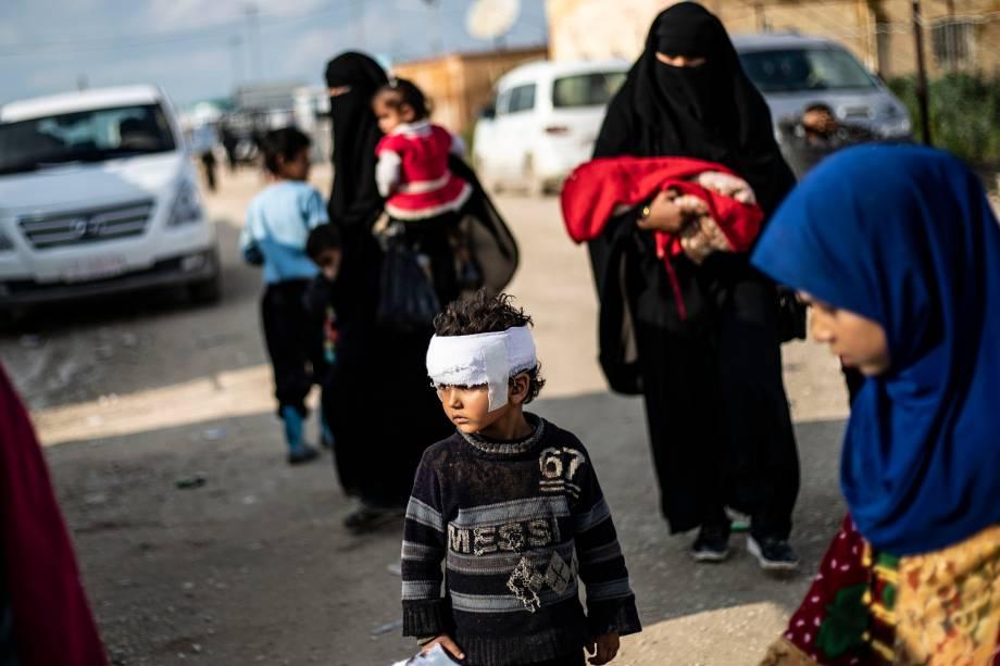 Criança ferida na cabeça caminha sozinha pelo campo de Al-Hol