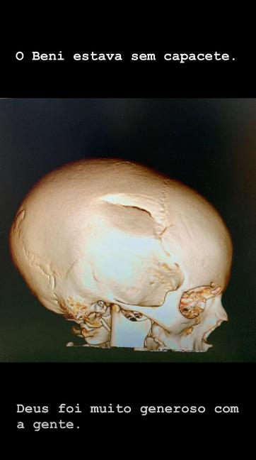 Raio-x do crânio de Benicio, filho do apresentador Luciano Huck, compartilhada pelo apresentador em seu Instagram
