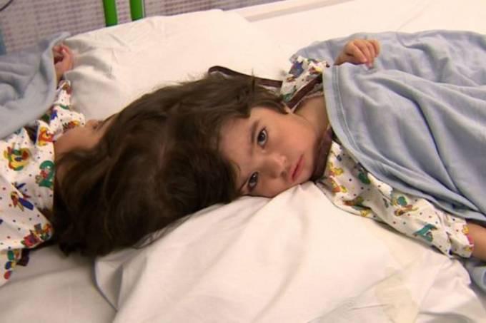 Gêmeas paquistanesas separadas em cirurgia