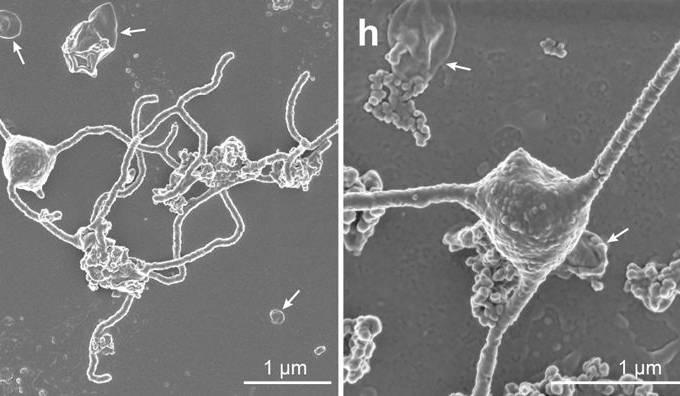 Lokiarchaea