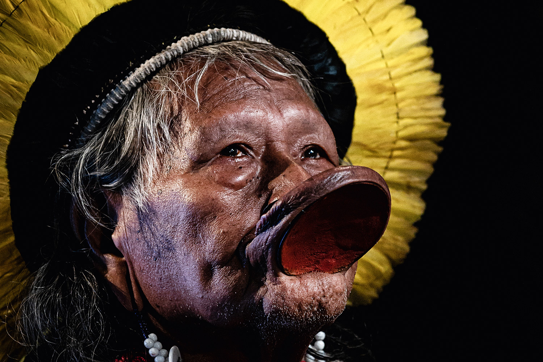 raoni - Líder indígena, cacique Raoni está internado em hospital em Mato Grosso