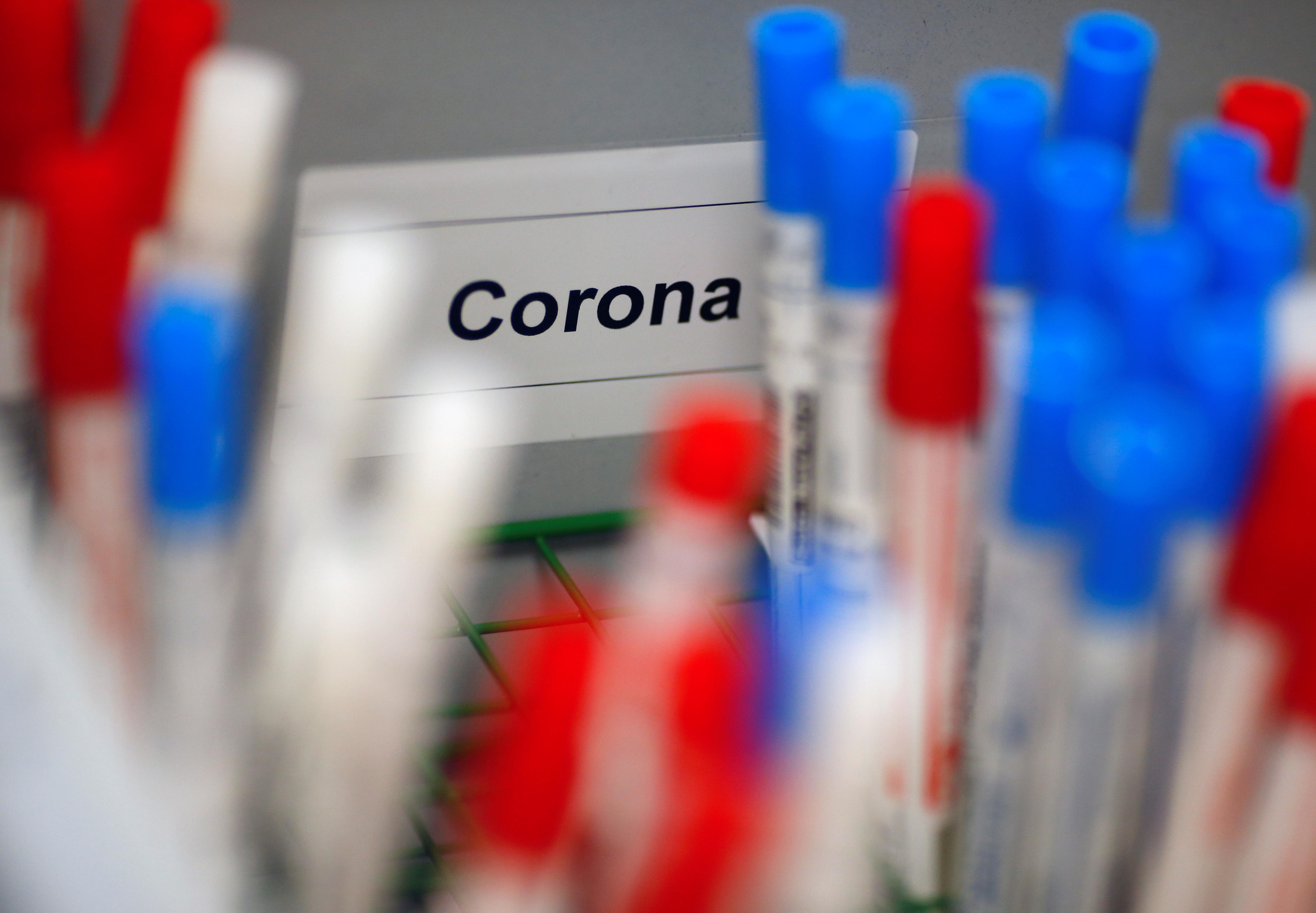 Planos cobrirão teste sorológico de Covid-19, determina ANS