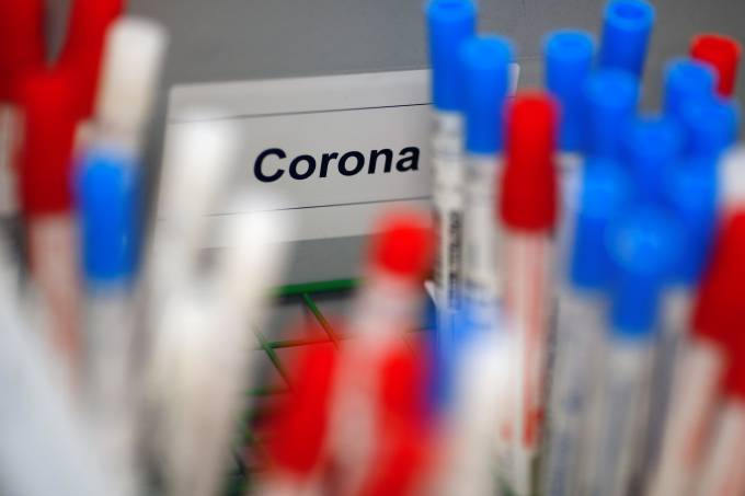 Plastic vials containing tests for the coronavirus are pictured at a medical laboratory