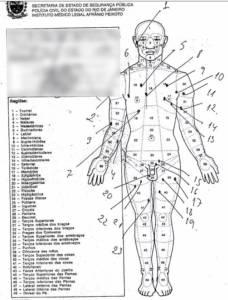 Laudo mostra que seis das 30 perfurações no corpo de Anderson do Carmo foram na região da genitália