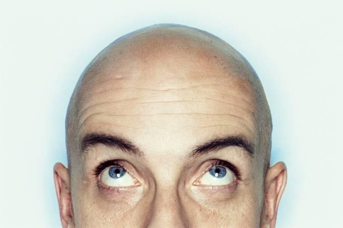Bald young man, looking up, close-up