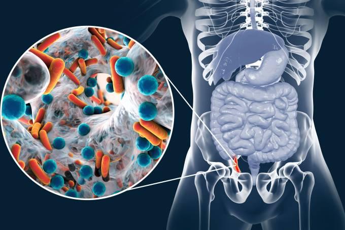 Appendicitis, illustration
