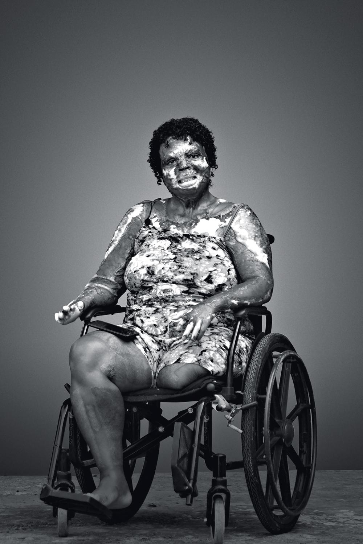 """Marciane dos Santos - """"Não desisti da vida"""", afirma mulher que foi queimada pelo ex-marido"""