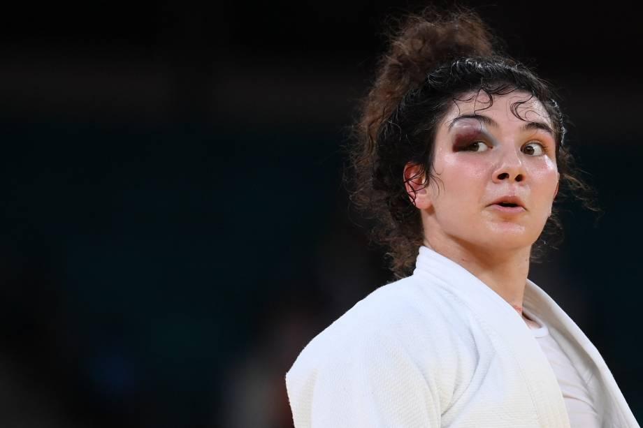 A russa Madina Taimazova com o olho roxo durante luta contra a japonesa Chizuru Arai no judô -